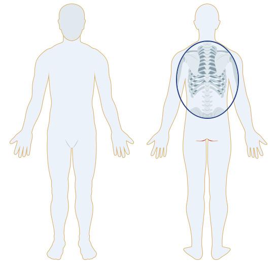 背中 の 痛み 病気