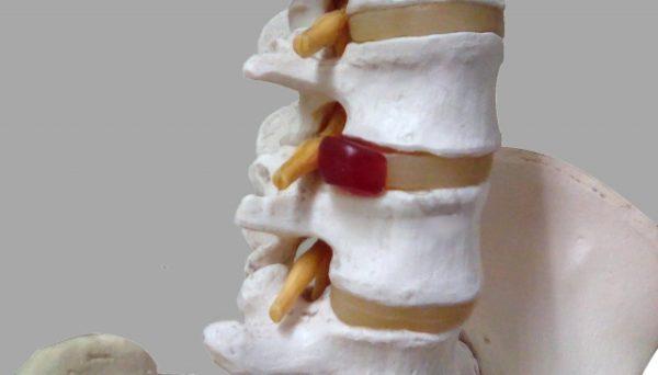 ヘルニア_腰椎椎骨