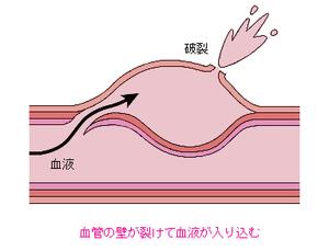 解離 性 動脈 瘤