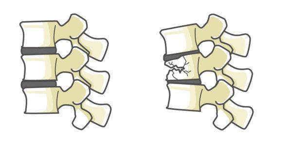 脊椎圧迫骨折した背骨イラスト