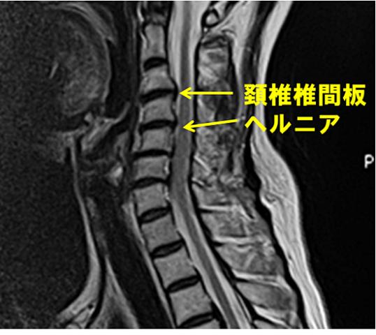 頚椎 椎間板 ヘルニア 頚椎椎間板ヘルニアとは?初期症状や手術を検討すべき症状は?