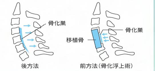 頚部後縦靱帯骨化症の手術法
