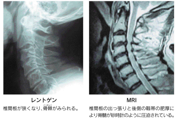 脊柱管狭窄症_レントゲン