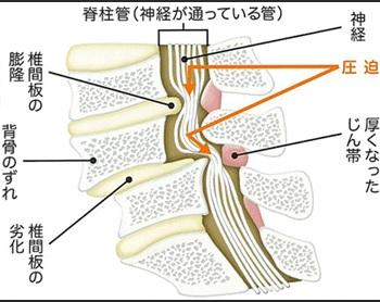 腰部脊柱管狭窄症_原因