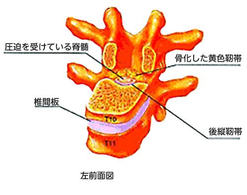 胸椎黄色靭帯骨化症_脊柱管