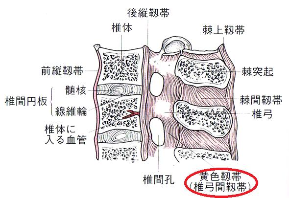 胸椎黄色靭帯骨化症_黄色靱帯