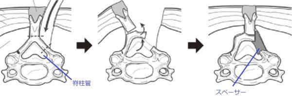 頸椎椎弓形成(片開き法)