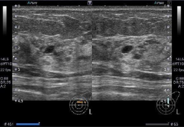 乳腺超音波