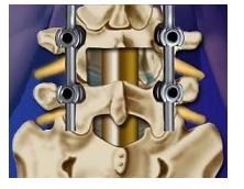 手術 腰椎 記 症 すべり 体験
